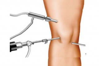 Total, Partial Knee Replacement Surgery Specialist Surgeon in Mumbai | Dr. Amyn Rajani